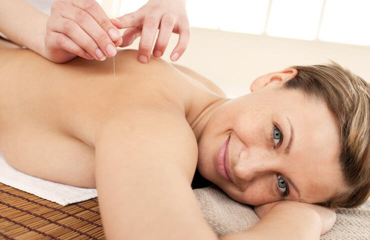 Acupuncture Treatment for Menopause