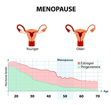 Estrogen and progesterone in the different stages of menopause