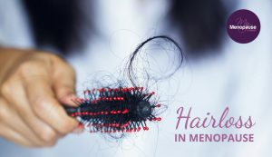 Hairloss in Menopause
